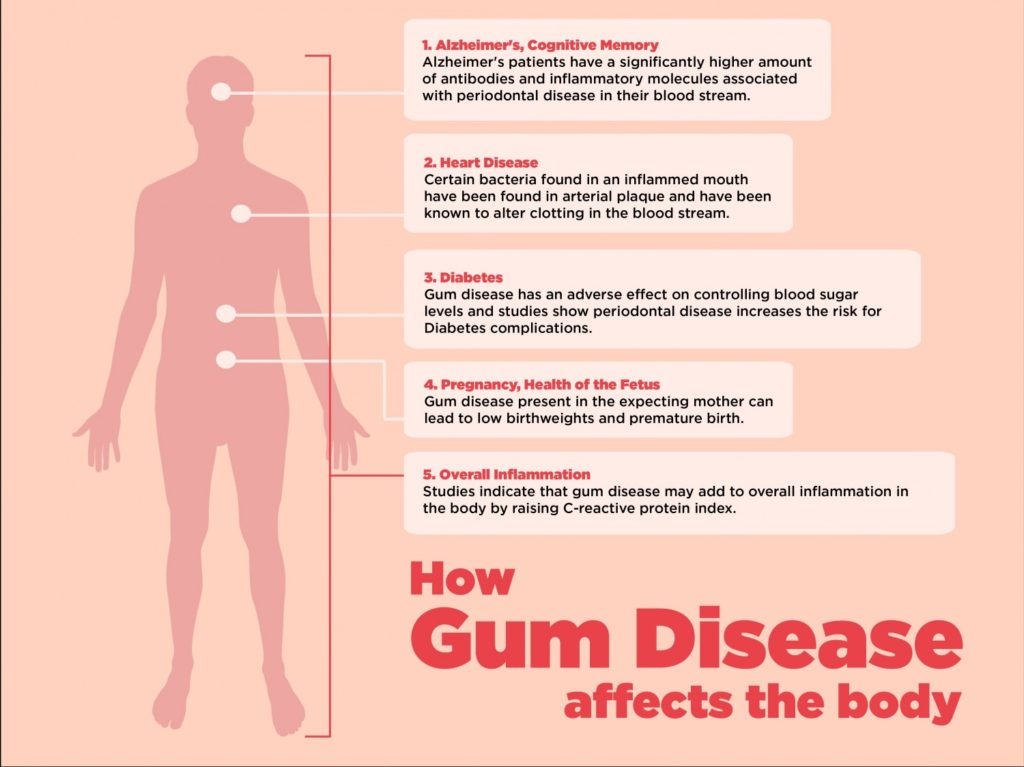 How Gum Disease Can Lead To Some Serious Medical